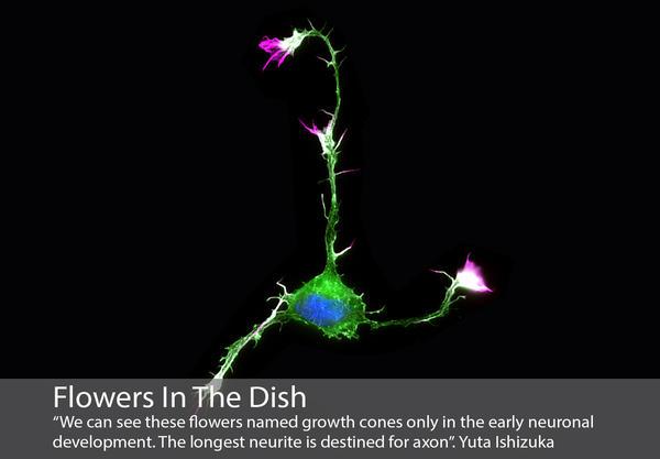 Mikroskopisk bilde av en nervecelle som ligner på en blomst