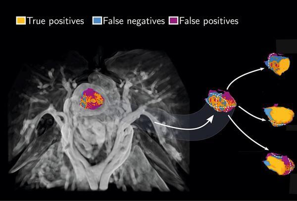 Hodneland et al, Automated segmentation of EC on MRI, Scientific Reports, 2021