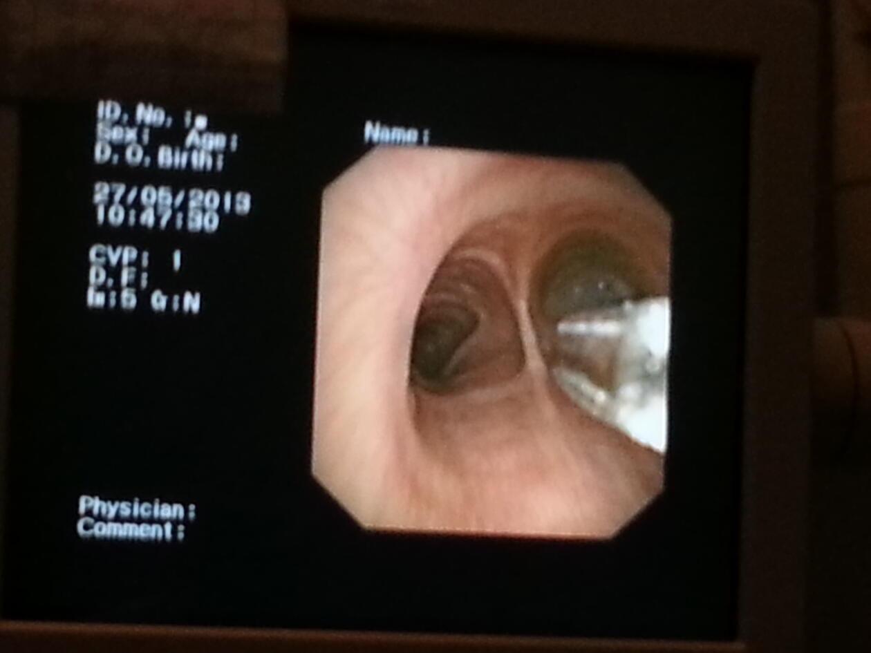 Soppmiljø i lungene