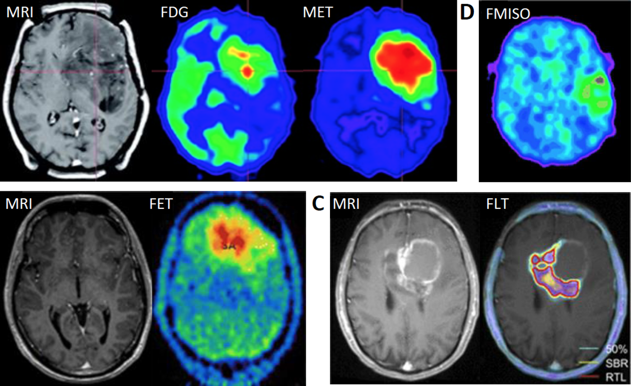 The pictures shows some imaging modalities (MRI and PET) used in the clinic to detect brain tumors and to monitor their progression.