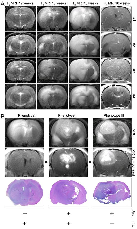 Brain tumours established from human biopsies.