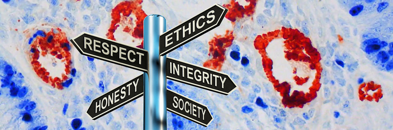 Signpost pointing towards Respect, Ethics, Honesty, Integrity and Society, on a background of a microscope picture of cancer cells.