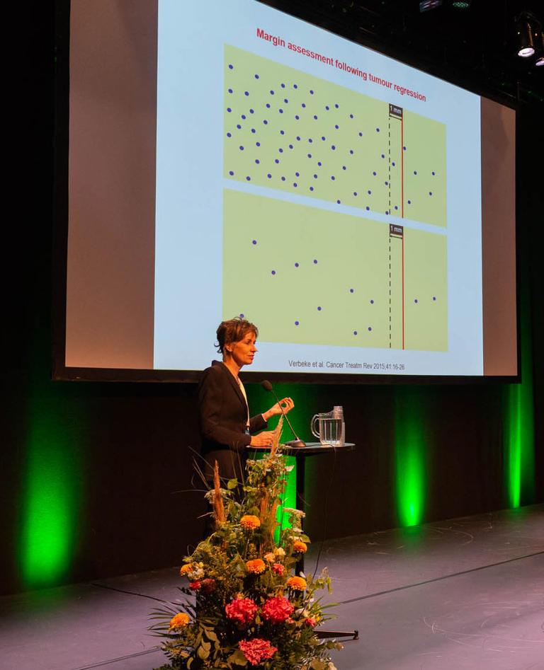 Caroline Verbeke er leder for Pancreasnettverket Norge