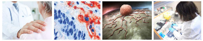 Collage of 4 photos from CCBIO labs, and cancer cells
