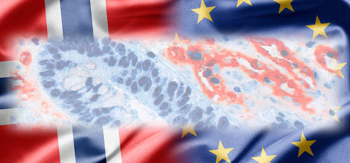 EU flag and Norwegian flag together with cancer research microscope photo