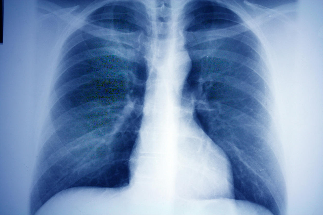 Røntgen av lunge