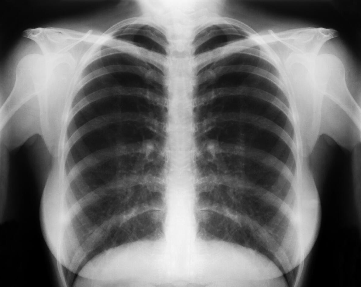 X ray of lungs