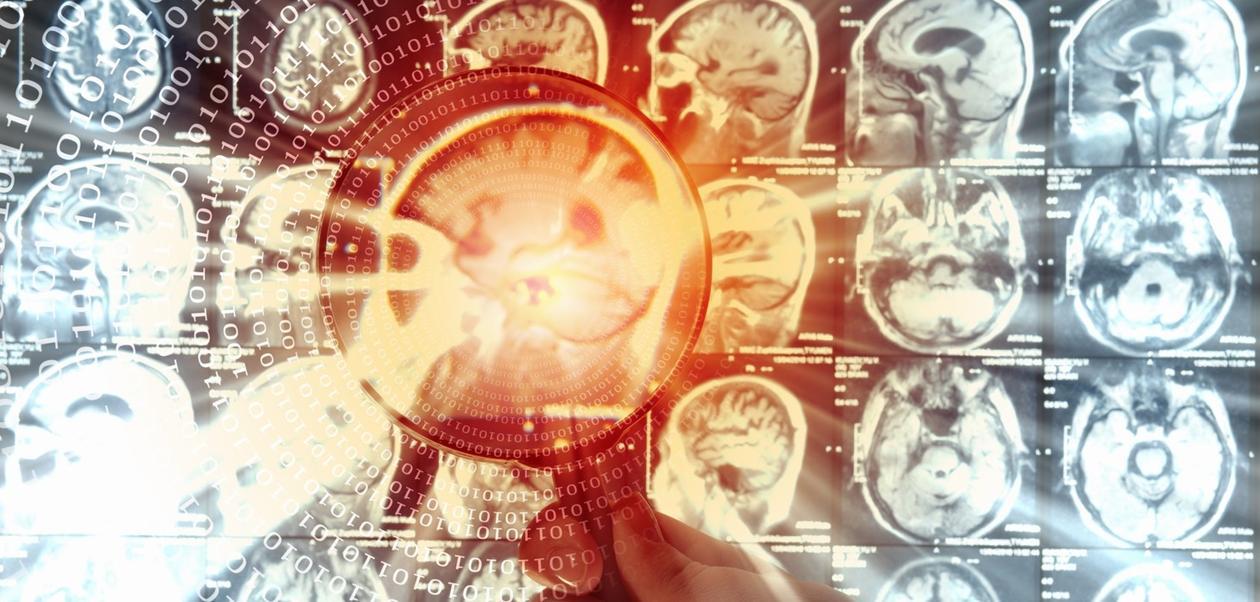 Hjernescanbilder