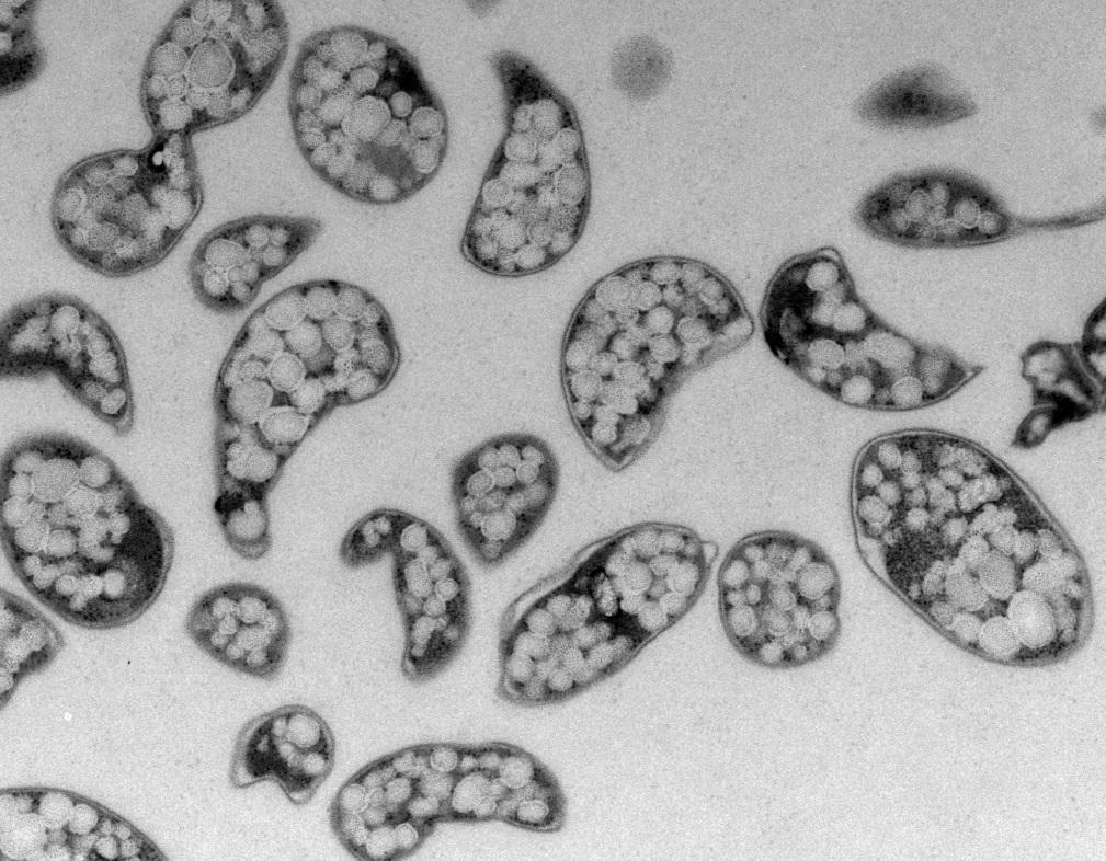 Methylacidiphilum