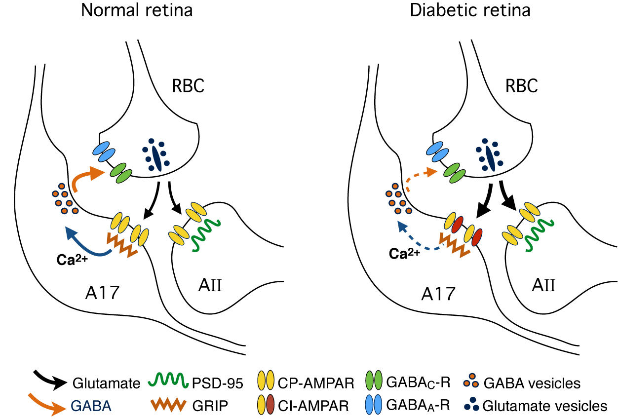 Changes in diabetic retina