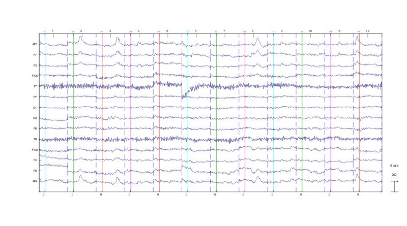 EEG Brain Waves Image