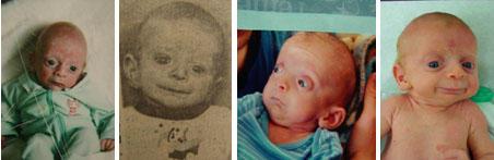 Bilder av guttebarn med karakteristiske sykdomstrekk