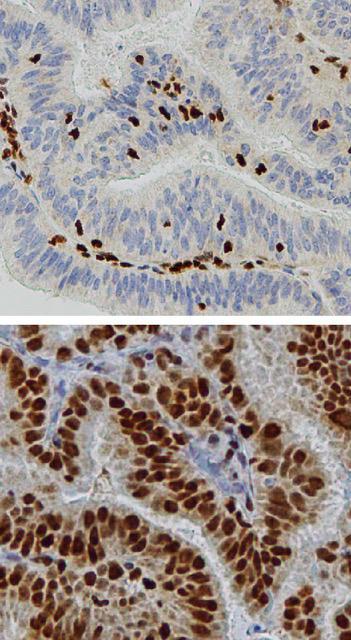 Microscope photos of tissue.