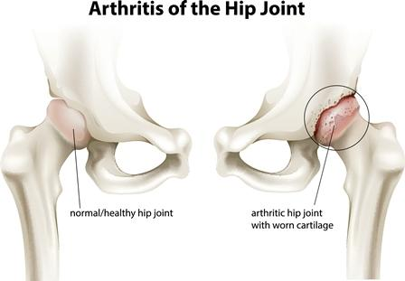 anatomical depiction of hip osteoarthritis