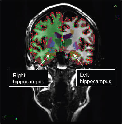 hjerneimaging, hippocampus