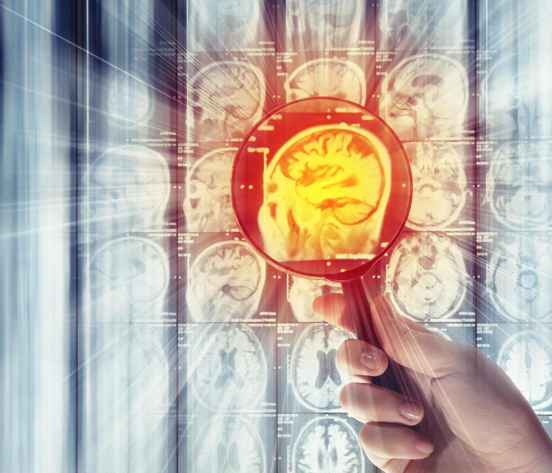 MR hjerne forsørrelsesglass