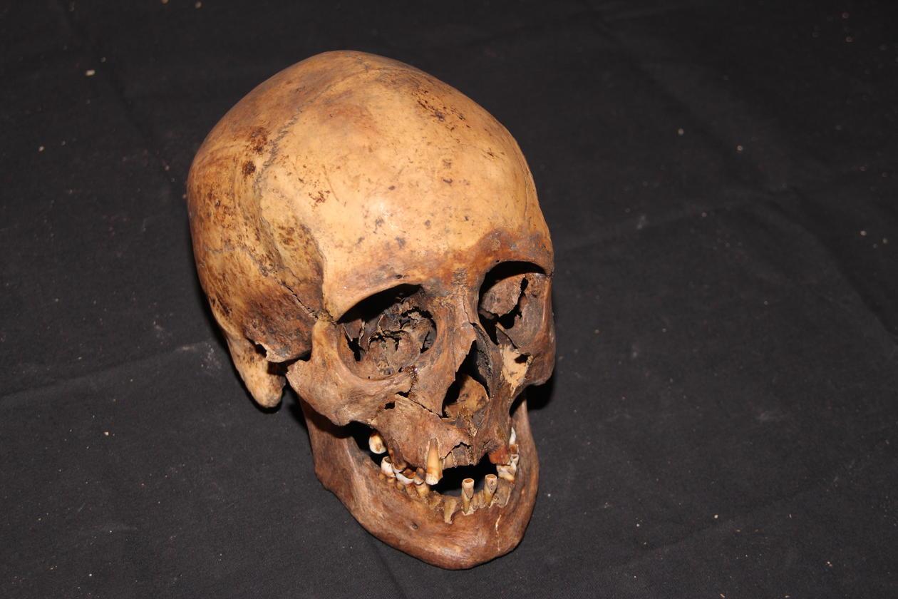 Bilde av hodeskalle