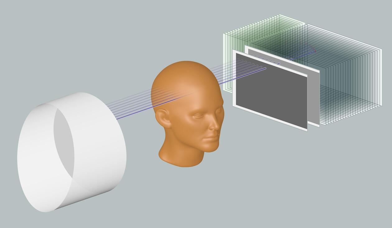 IFT_MedicalPhysics_Illustration_brain