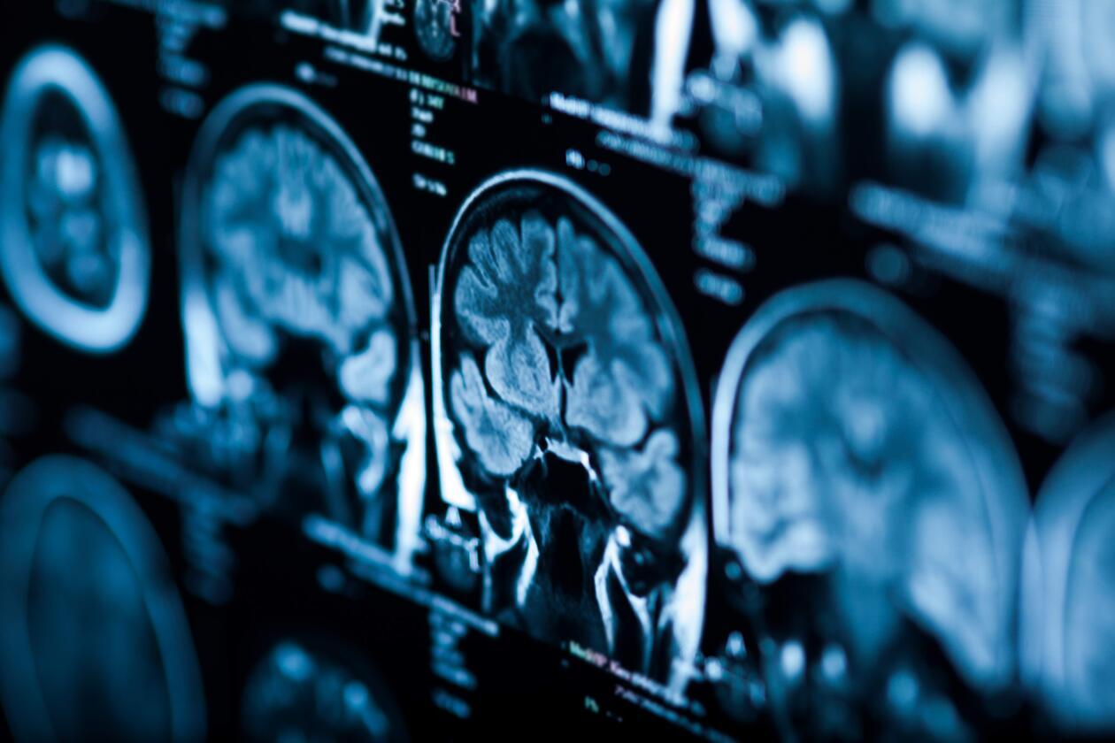 Røntgenbilde av hjerne