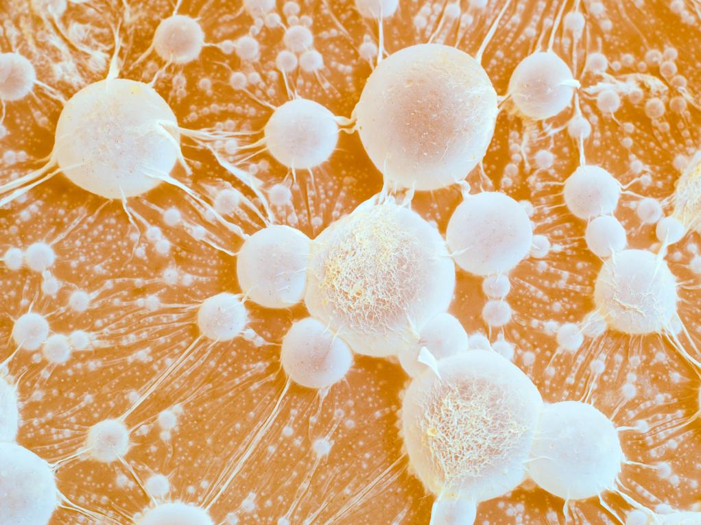 kreftceller med metastaser