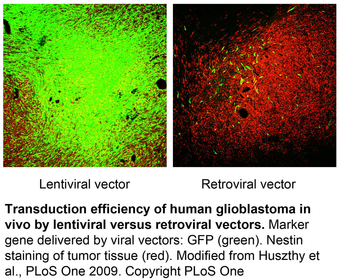 Figure 1. Transduction efficiency of human glioblastoma in vivo by lentiviral versus retroviral vectors