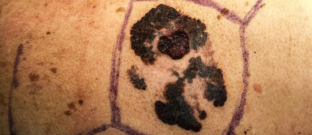 Ondartet føflekkreft, bilde av selve føflekken.