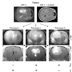 MRI scans demonstrating brain tumour phenotypes