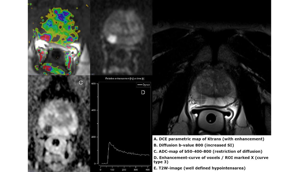 Multiparametric Magnetic Resonance Imaging (mpMRI) showing a tumor in the  right peripheral zone of the prostate gland.