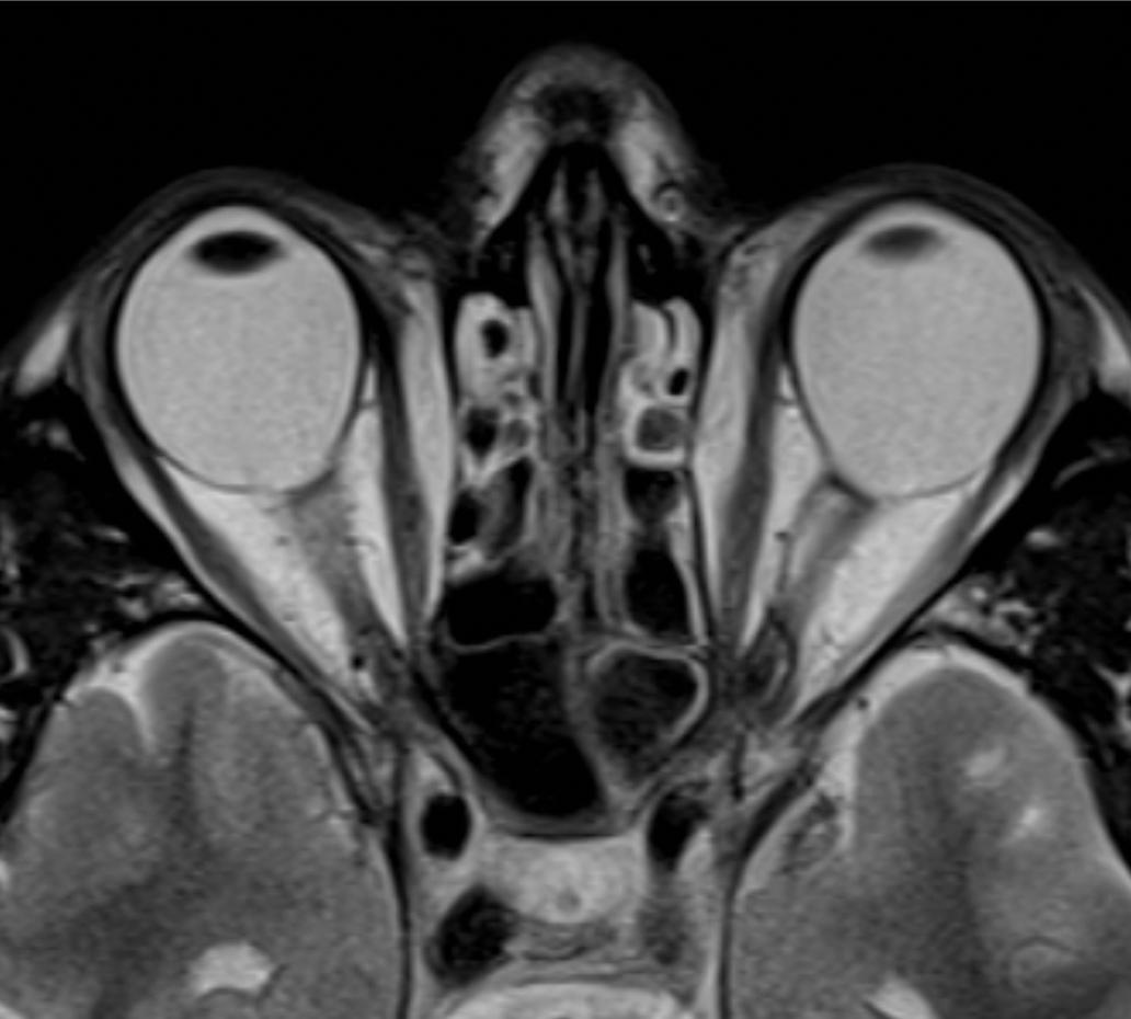 axial T2-weighted MR images of the orbits of a patient with high myopia-excavated optic disc anomaly