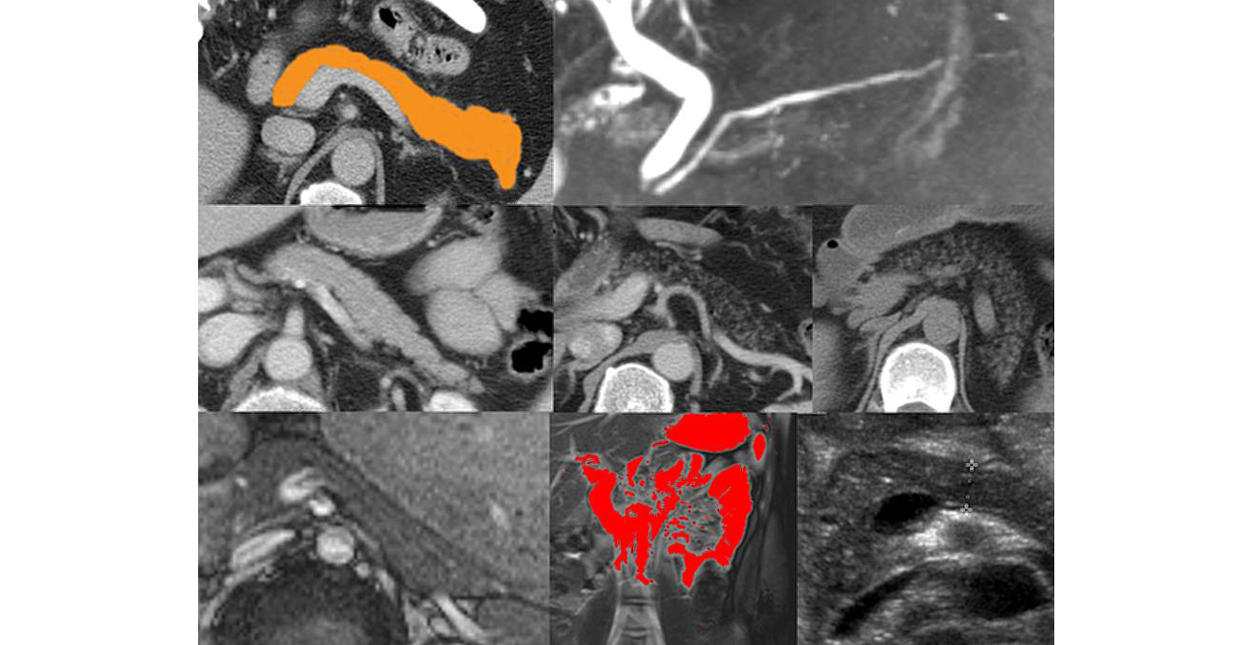 Pancreatic imaging by MRI, CT and ultrasound in diabetic patients and in healthy subjects.