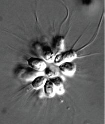 choanoflagellates