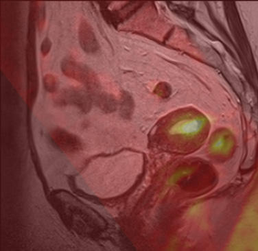 Abdomen. Diffusion weighted imaging of the pelvis in patient with uterine cancer.