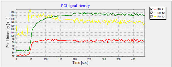 MR signal intensity curves from different regions of interest (ROIs) based on dynamic contrast-enhanced MRI in uterine cancer.