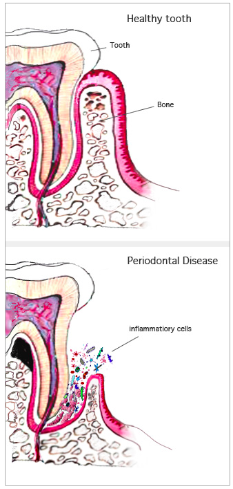Image shows the effect of periodontal disease on teeth and gums