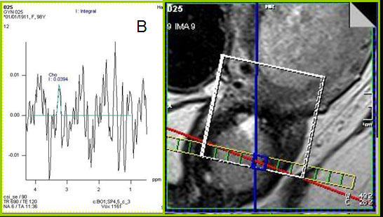 Spectroscopy image, of graphic image and graph.