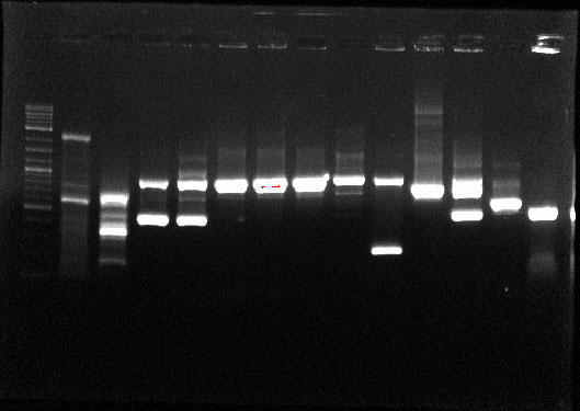 Size separated DNA fragments in a stained agarose gel and visualized under UV light