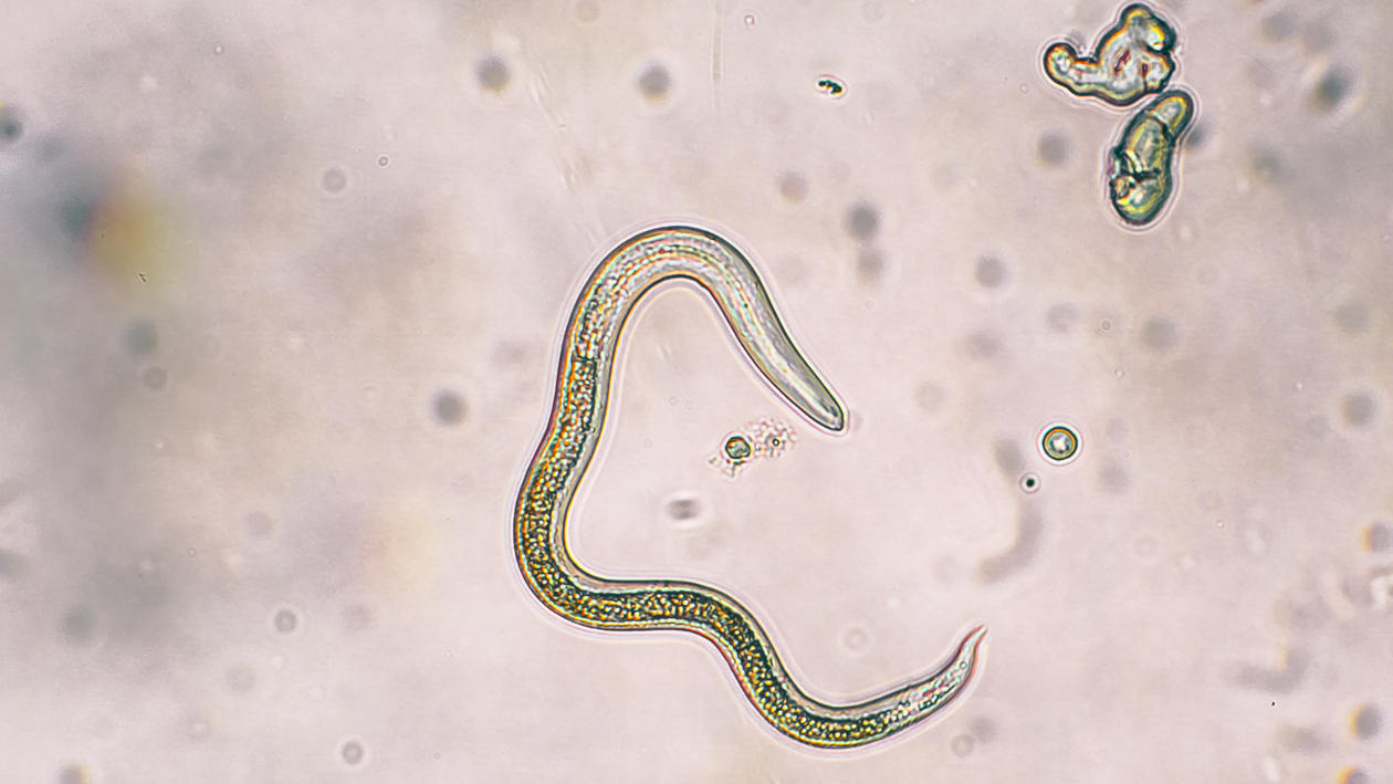 Image result for intestinal worms