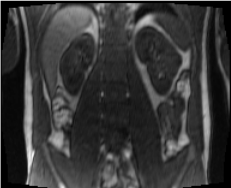 MR image of lung