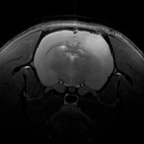 Eit anatomisk bilete av ein rottehjerne. Den lyse regionen er ein type svulst...