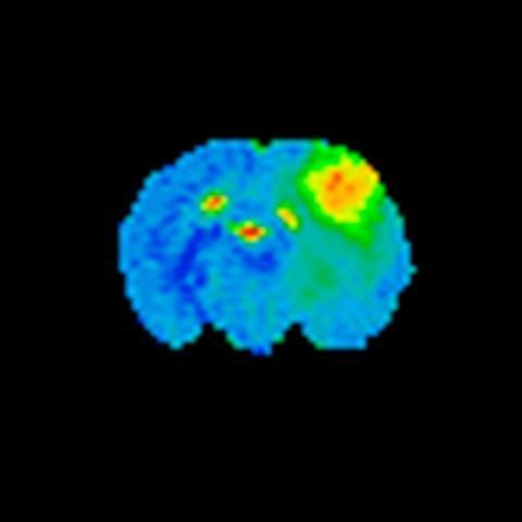 Bilete av same rottehjerne. Svulsten er lysare enn vanleg hjernevev.