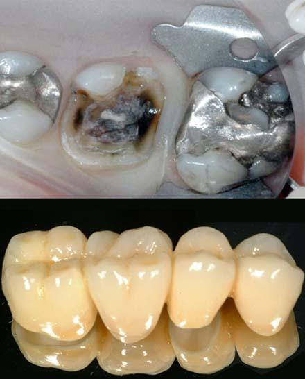 oral restorations