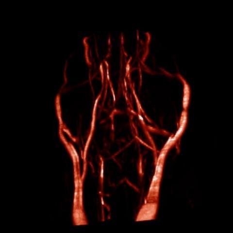 Bilete frå MRI-skanner som syner blodårer i musenakke og -hjerne.