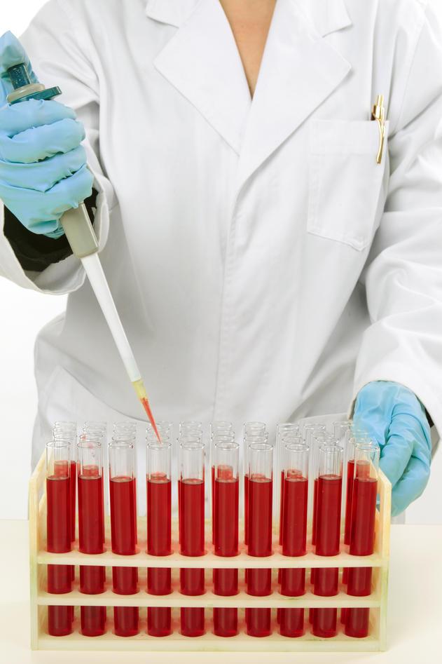 Illustrasjonsfoto brukt ifm sak om leukemi forskning ved UiB, desember 2011