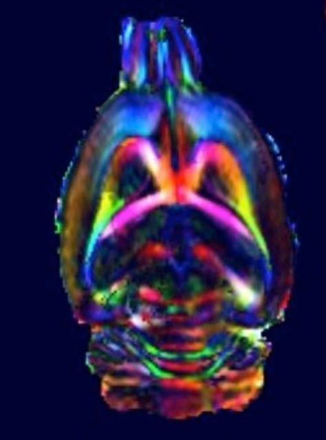 Diffusion tensor imaging (DTI) som syner den kvite substanstrakta i rottehjernen