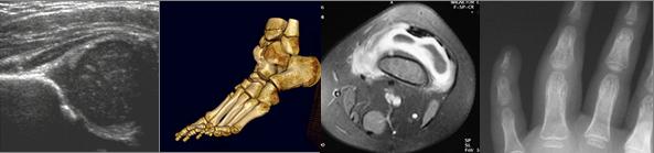 Paediatric MSK images