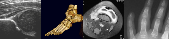 Paediatric MSK images