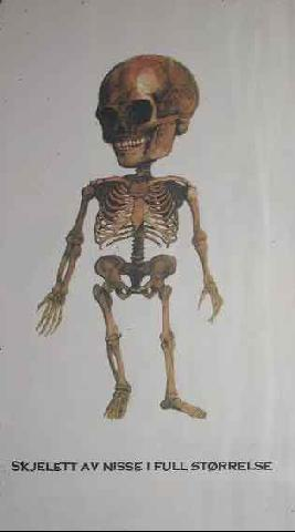 Røntgenbilde av nissen