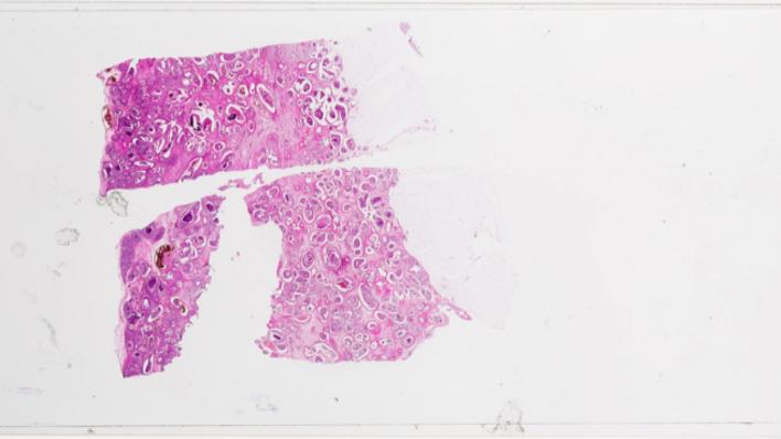 Prøve av kreftcelle i mikroskop