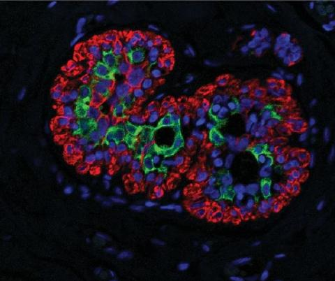 Light microscopic image of breast tissue labelles with fluorescent dyes