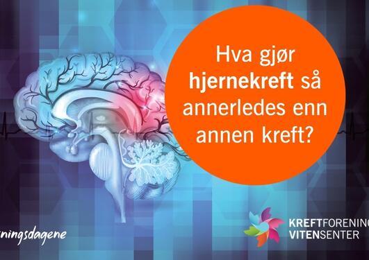 Webinar | Hva gjør hjernekreft så annerledes enn annen kreft? – Forskningsdagene